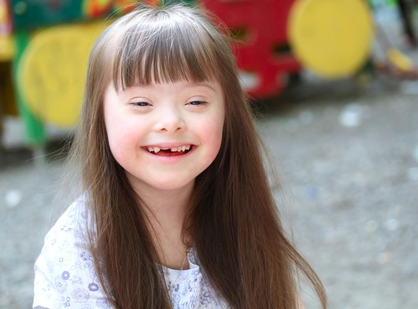 Солнечный ребенок: 13 внешних признаков синдрома Дауна