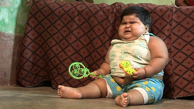Заставляет задуматься: ТОП-8 детей, которые страдают ожирением