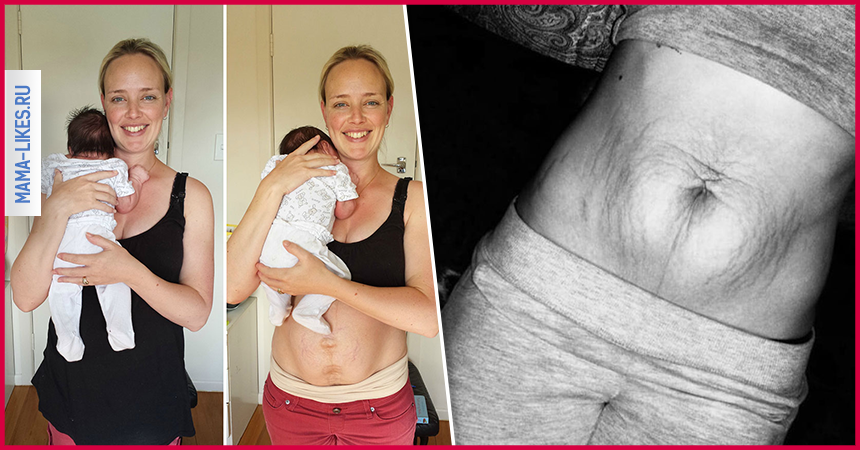 поможет какое тело после родов становится сказать, что работа