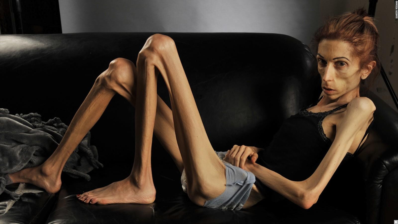 Почему 25% женщин родит только с ЭКО: 6 грустных причин