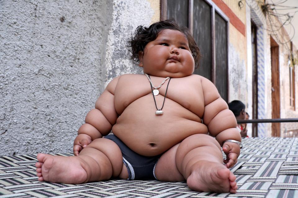 Эта девочка весит уже 17 кг, хотя ей всего 8 месяцев