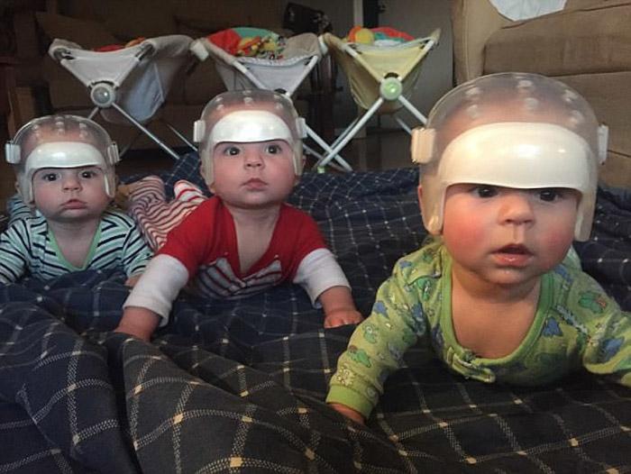 1 случай на 500 триллионов: почему эта милая тройня носит шлемы?