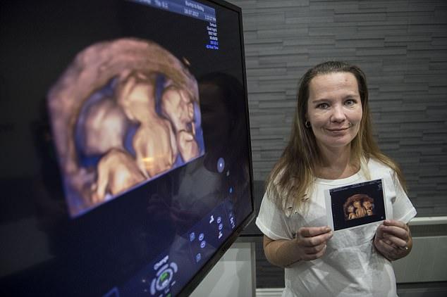 Мать 4-х детей захотела еще одного, но УЗИ показало сюрприз