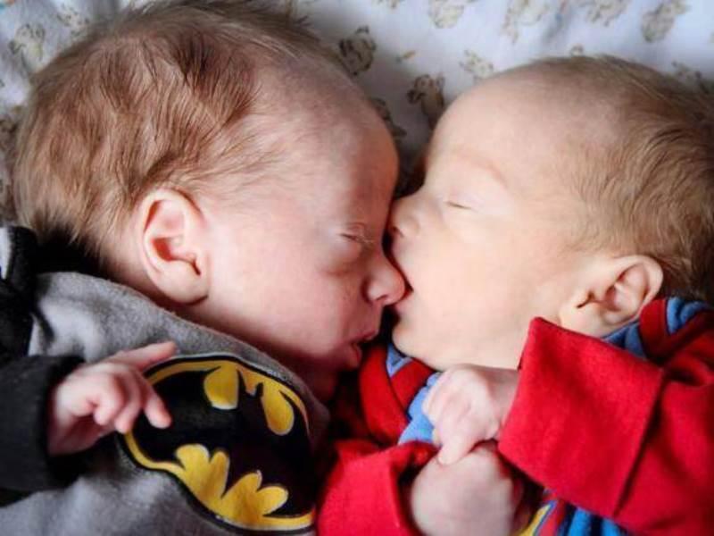 Шанс умереть 50%: как крепкие объятия близнецов спасли им жизнь