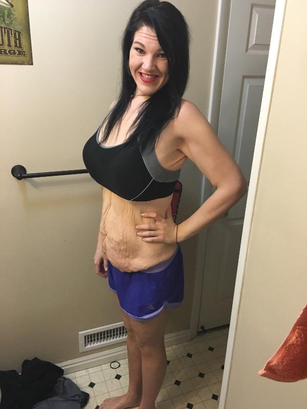 Похудеть, чтобы выжить: молодая мама сбросила 100 кг - после инсульта