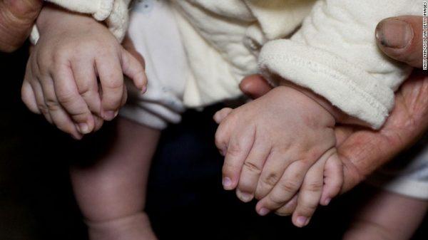 в Китае родился мальчик с 31 пальцем вместо 20