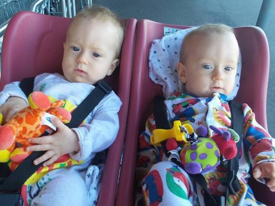 Шанс 50% на жизнь: эти близнецы обнялись, чтобы не погибнуть