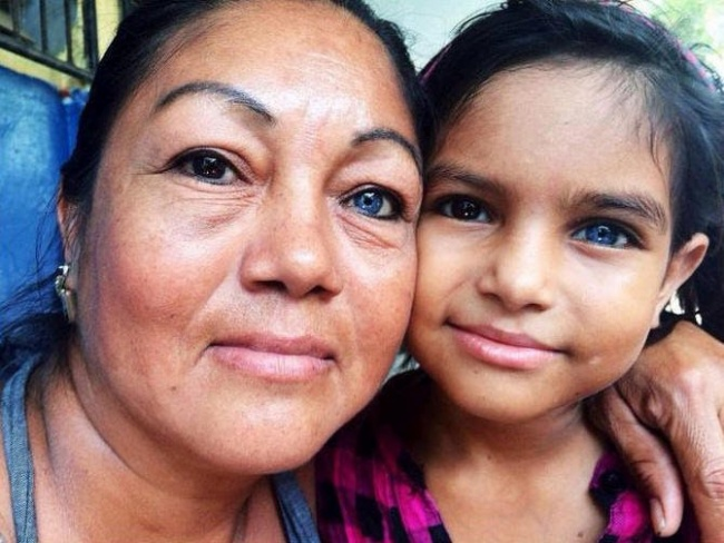 И ДНК — ни к чему: 25 детей, которые получили изюминку в наследство