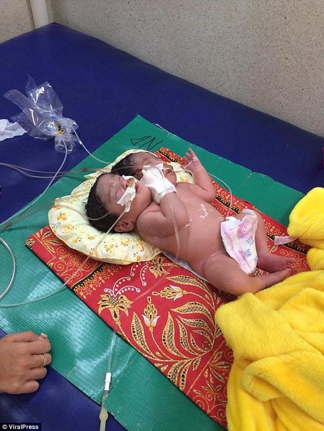 Женщина из Камбоджи родила сиамских близнецов с одним телом и двумя головами