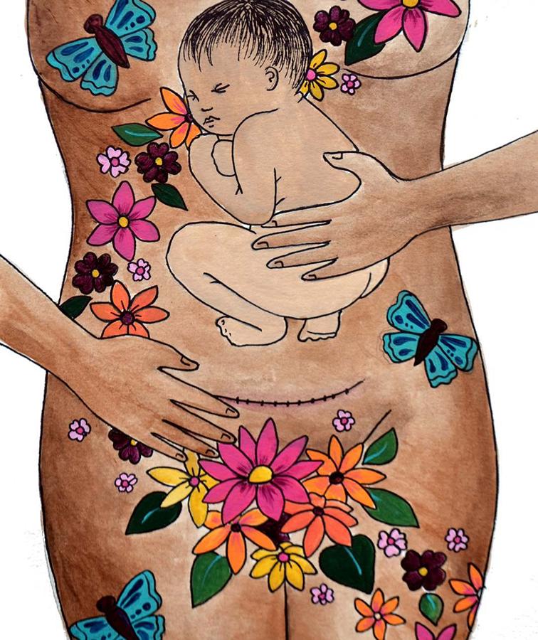 Роды — это подвиг: художница посвятила свои работы кесареву сечению