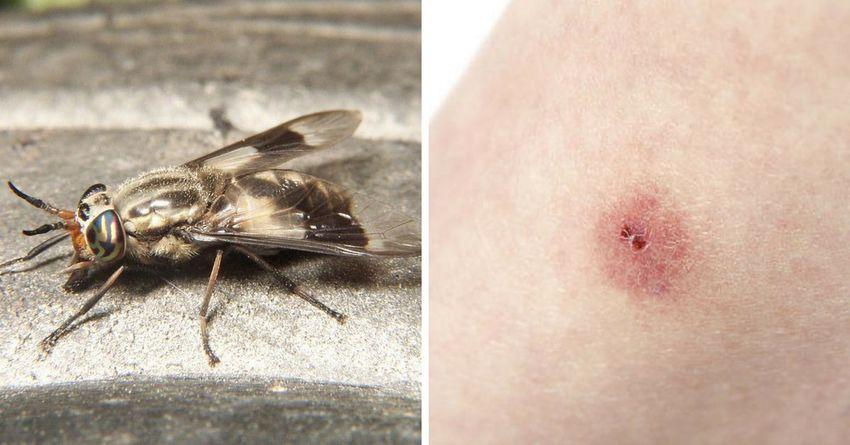 Вы спасете здоровье вашего ребенка, если сможете различать эти 12 опасных укусов