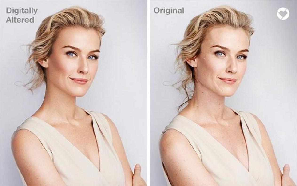 Растяжки — теперь в моде: магазины перестали фотошопить своих моделей