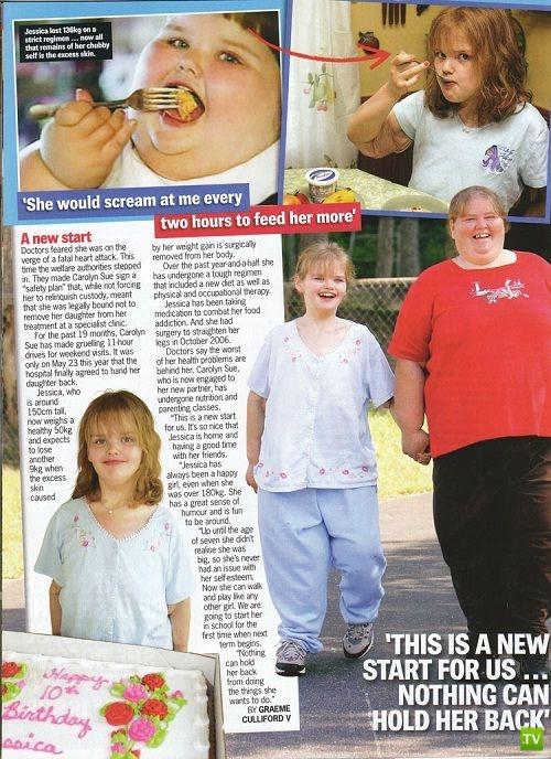 Самой толстой девочке в мире удалось похудеть. Вот как она выглядит сейчас