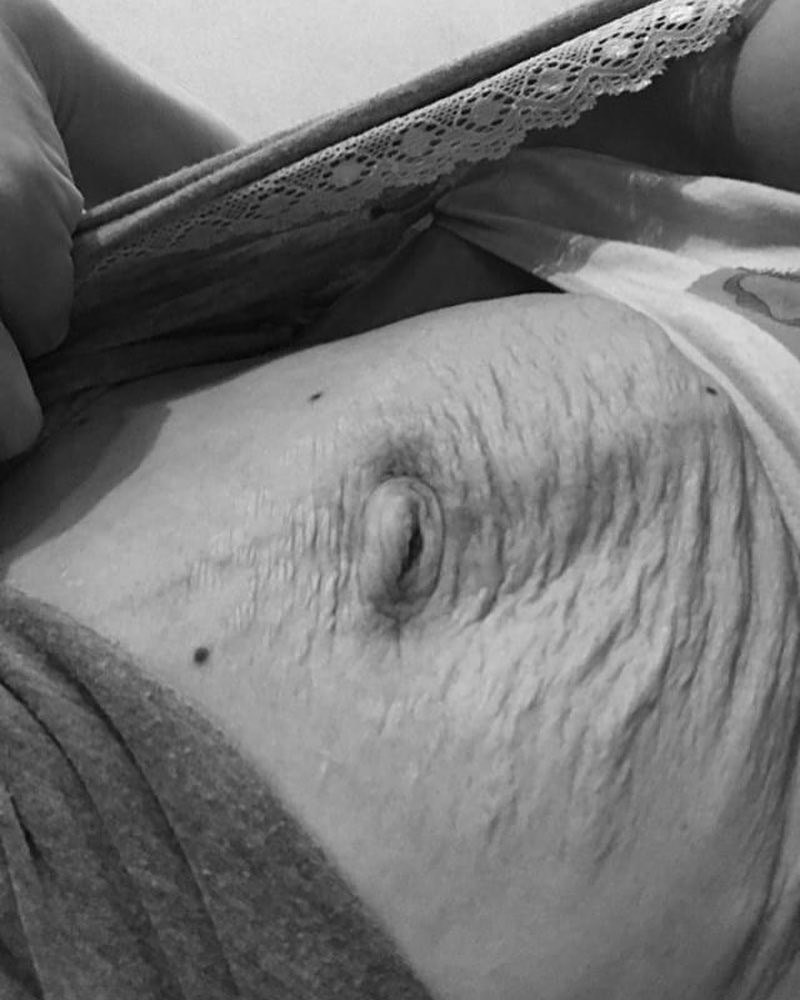 Вот как будет выглядеть живот, если за беременность набрать 25 кг и более