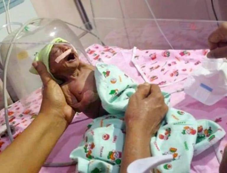 Дедушка спас недоношенную внучку, от которой отказалась родная мать