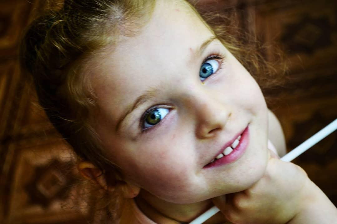 Вот почему у детей бывают глаза разного цвета