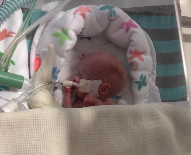 Малышу с весом 340 гр медики не давали шансов на жизнь, но сейчас он уже дома