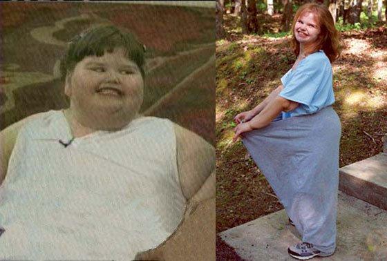 Ребенок похудел после года