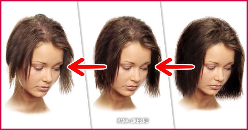 Выпадают волосы после родов что делать комаровский